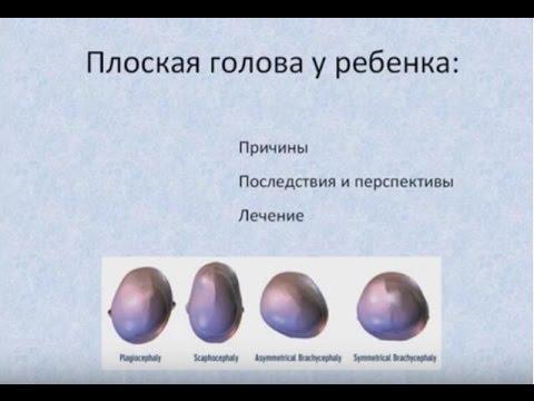 Плоская голова у ребенка: плагиоцефалия