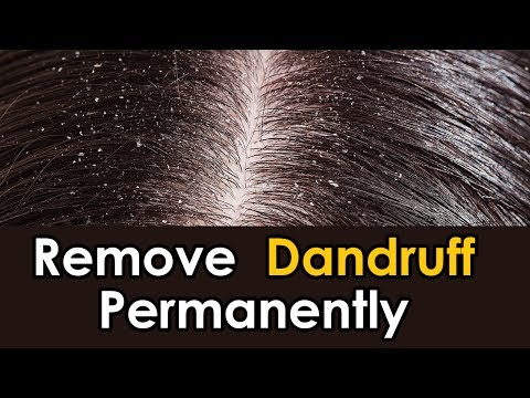 how-to-remove-dandruff-permanently-|-how-to-remove-dandruff-at-home-naturally-in-one-day