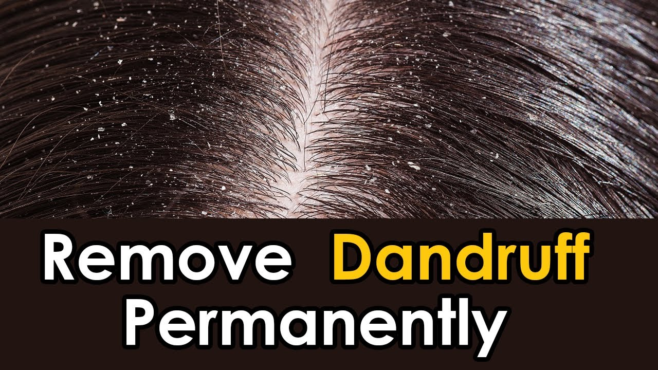 How to remove dandruff in one day naturally