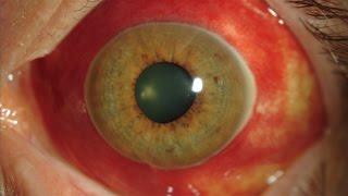 Vaso de reventado sanguíneo rápidamente el Cómo un ojo deshacerse en