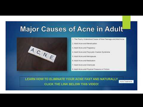 major-causes-of-acne-in-adult