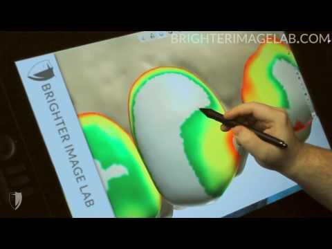 Brighter Image Lab -100% Digital Design - No Prep Veneers -  NO DENTIST