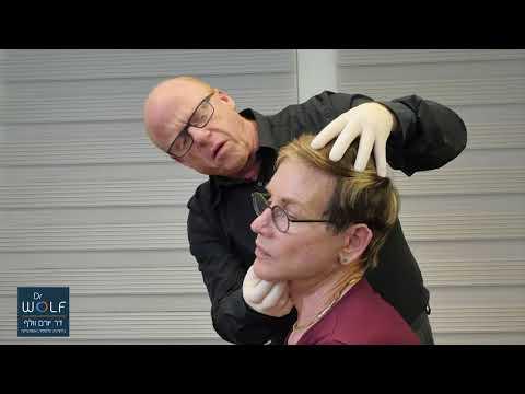 דוד דביר עושה ניתוח מיקרו מתיחת פנים - חלק 3 - התוצאה!
