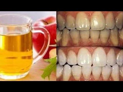 Gigi Putih Alami Hanya Dengan Sari Cuka Apel Youtube