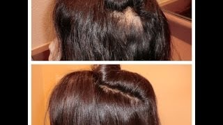 How to fix a thinning lace wig