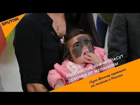 Российские врачи спасут девочку от меланомы