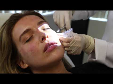 Stephanie Gets a PRP Facial