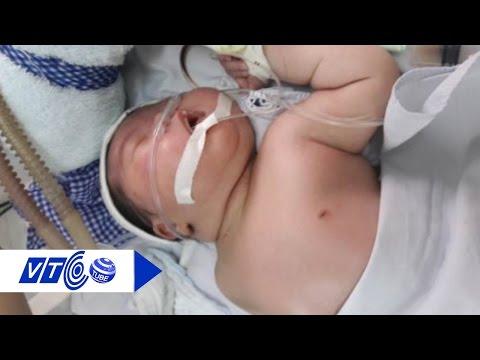 Bé 4.8kg sinh thường gãy xương đòn lỗi do ai? | VTC