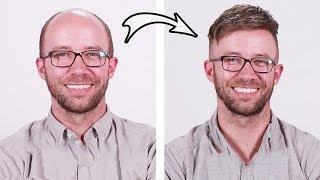 Bald Man Tries Semi-Permanent Hair Piece