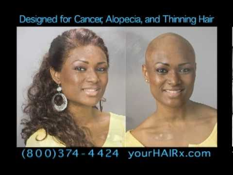 Wigs For Alopecia Cancer And Thinning Hair Youtube