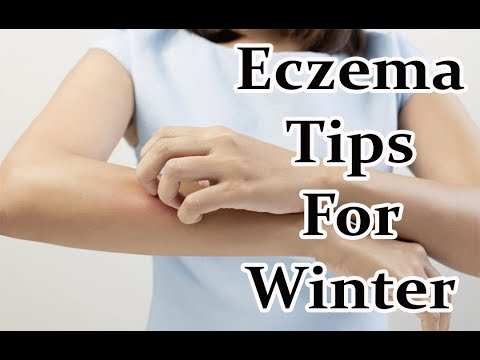 6 Tips For Keeping Eczema Calm in Winter