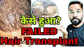 Fraud OR Failed Hair Transplant || 4 Month of Hair Transplant