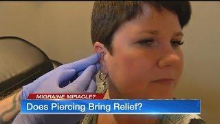 Daith piercing: Could it solve your migraine problem?