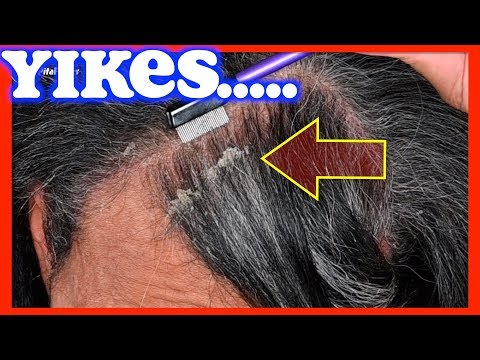 flakes-on-scalp-|-pitaflakes