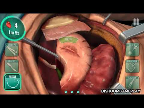 "Operate Now: Hospital (by Spil Games) ""INTRA-ABDOMINAL SEPSIS SURGERY"" - Android/iOS gameplay #5"