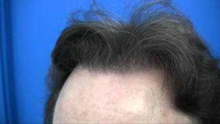 Hair Restoration by Dr Wong - 3068 Grafts - 1 Session
