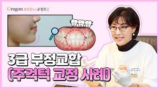 3급부정교합, 발치 후 교정으로 주걱턱 증상 개선한 【…