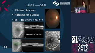 APAO 2019 – Quantel Medical Symposium SubLiminal Laser for Retinal Disorders