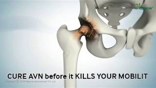 Avascular necrosis (AVN) is the death of bone tissue due to a loss of blood supply.If it isn't treat.