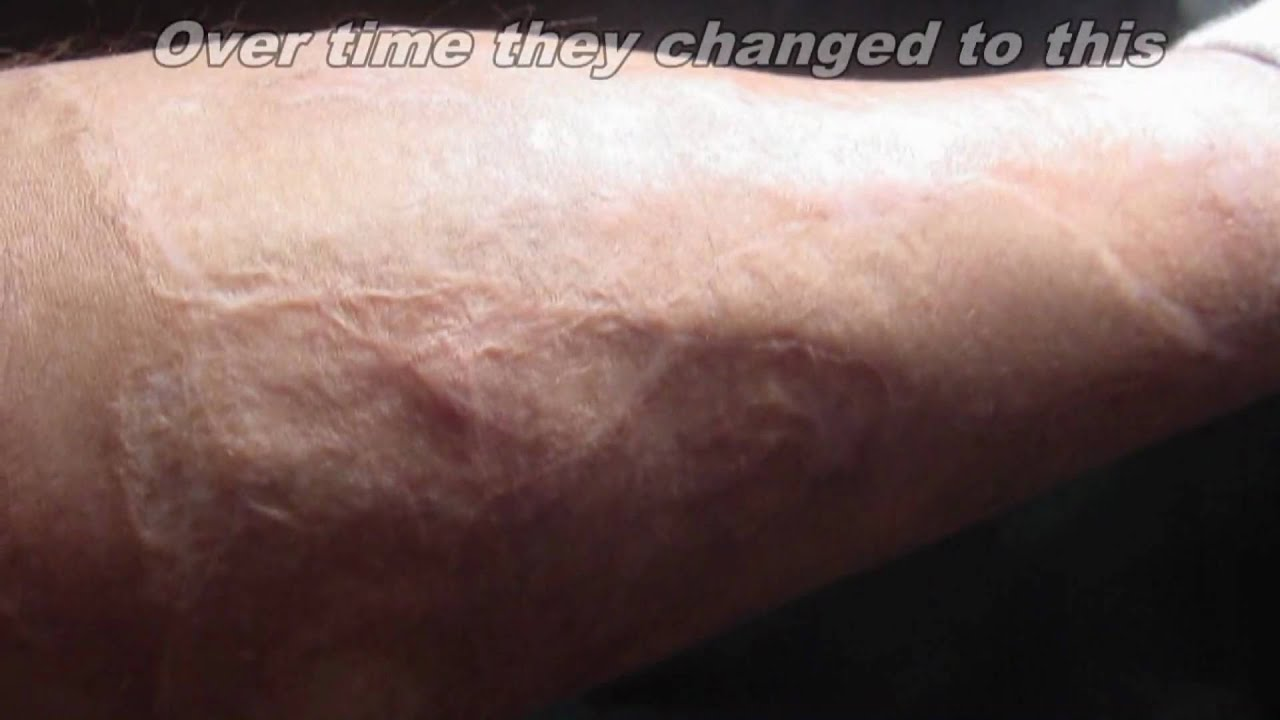 Reducing/removing Skin Graft Scars? Doctor Answers, Tips