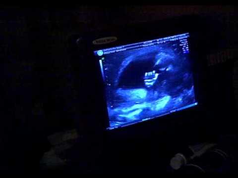 It's a boy!!!  20 weeks, 1 Day - Ultrasound