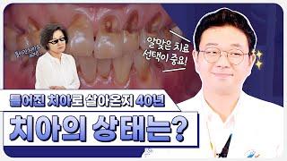 [틀어진치아] 틀어진치아 부정교합 방치 40년 된 치아…