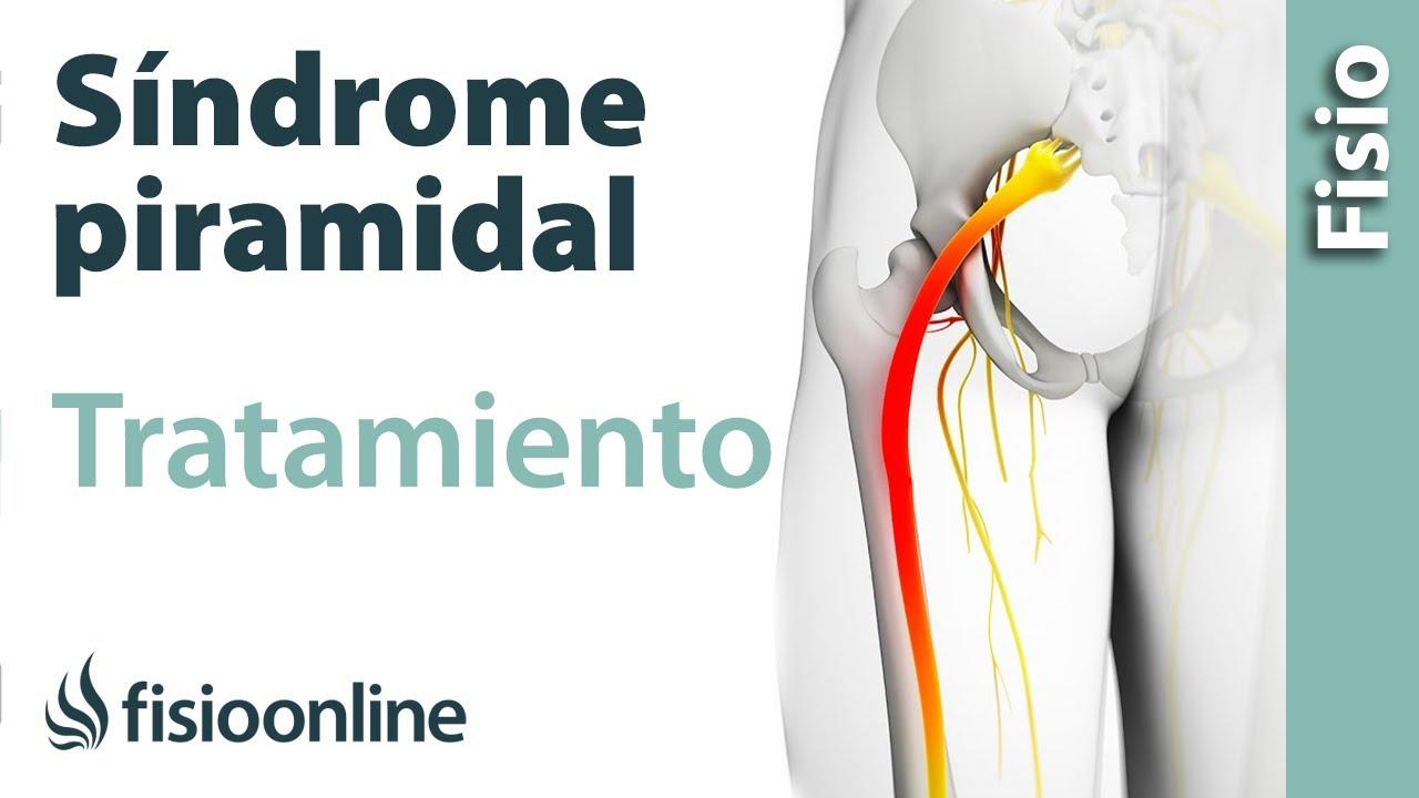 Los problemas con el síndrome piriforme pueden causar dolor en la ingle