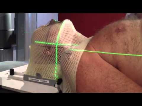 My radiation treatment