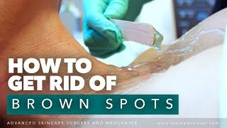 How to Remove Brown Spots from Chest and Face   IPL Treatment Los Angeles