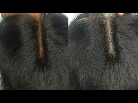 How to Perfectly Bleach Knots FIRST Attempt Expert on a Closure