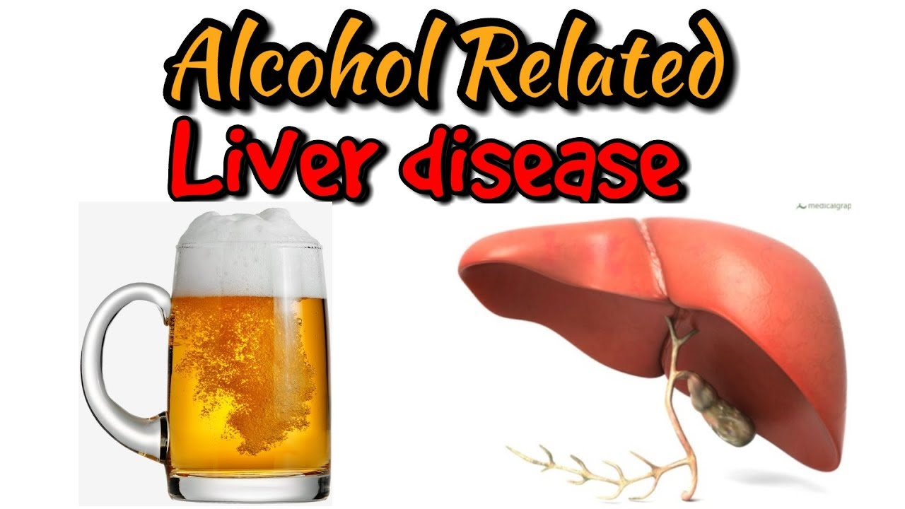 Alcohol related liver disease,alcoholic hepatitis in hindi/urdu