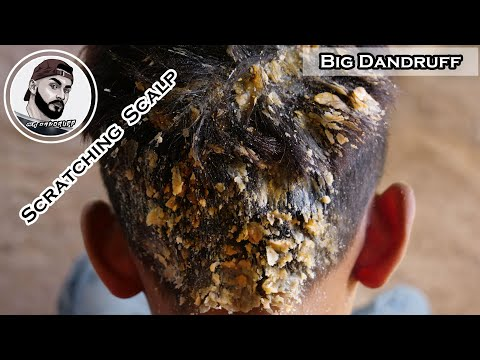 Itchy Psoriasis Scalp | Huge Dandruff Flakes Removal In My Brother's Hair #14