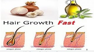 Home Remedies For Hair Growth | Fast Hair Growth Home Remedies