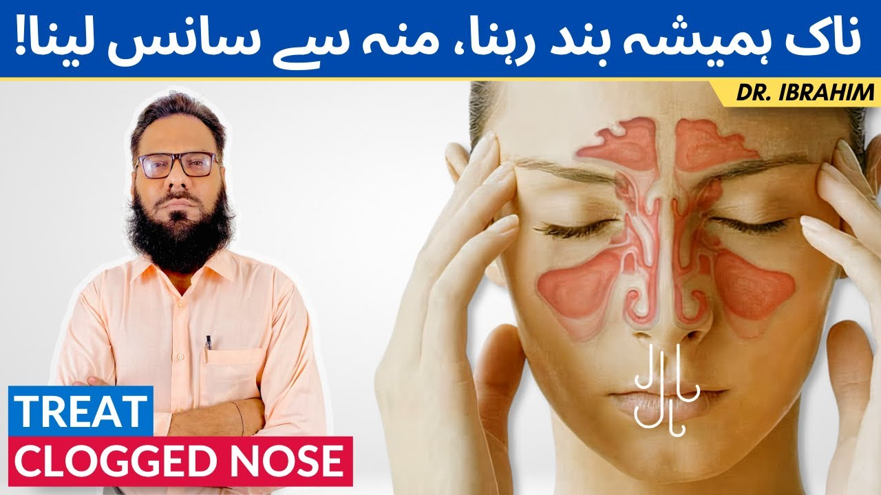 Download Naak Band Ka Ilaj - Nasal Congestion - Munh Se Sans Lena - Unclog Your Nose - Dr. Ibrahim