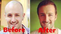 How Much Does A Hair Transplant Cost? - ANSWERED