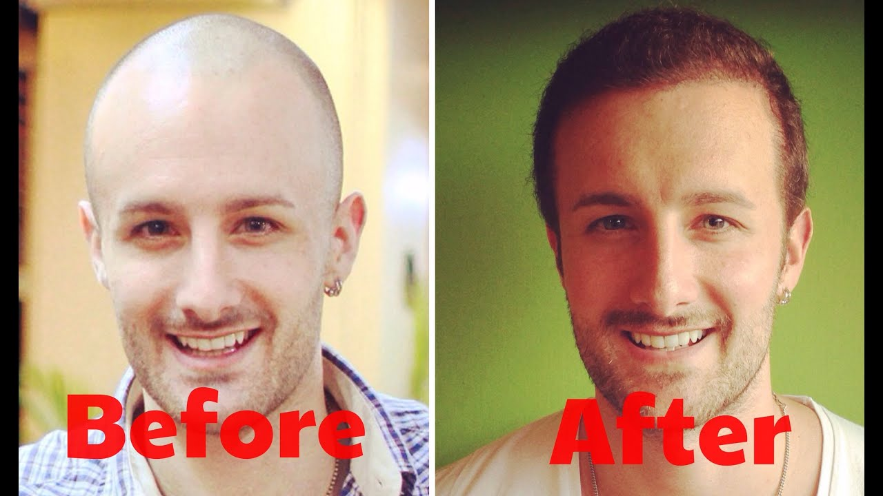 How Much Does A Hair Transplant Cost Answered Youtube
