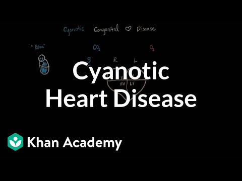 What is cyanotic heart disease | Circulatory System and Disease | NCLEX-RN | Khan Academy