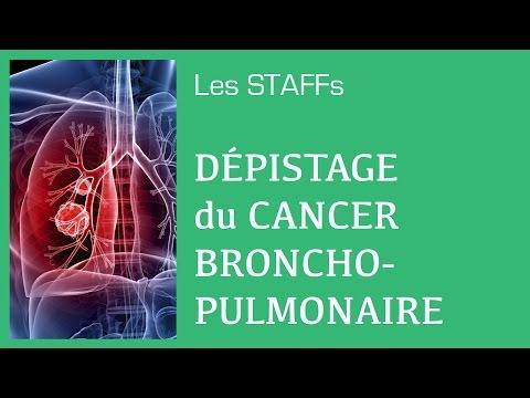 hqdefault - Le cancer broncho pulmonaire primitif