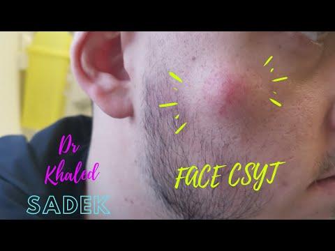 Large Face Cyst Removed. Dr Khaled Sadek LipomaCyst.com