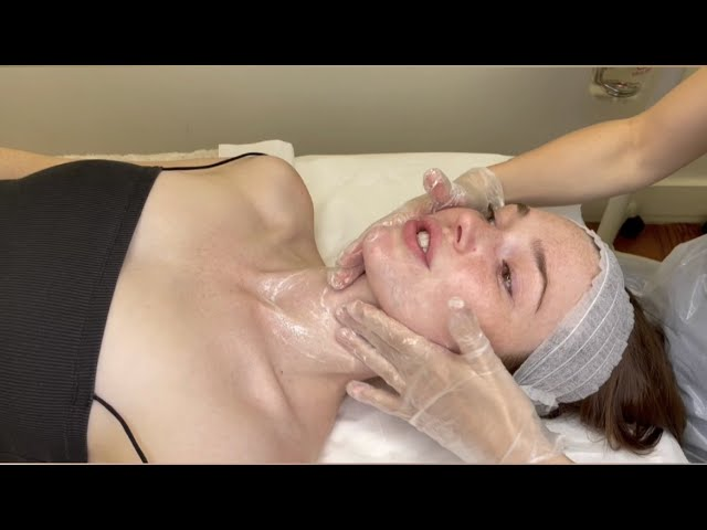 Microneedling Combo With DMK Enzyme Therapy