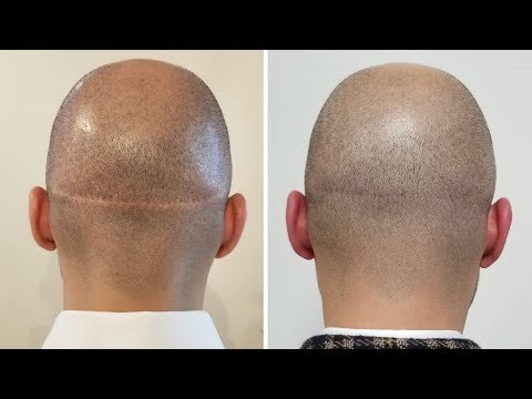 How To Get Rid Of Hair Transplant Scars | Scalp Micro USA