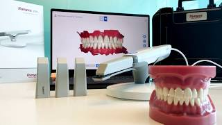 Runyes 3DS Intraoral Scanner | Streamhealth Dental