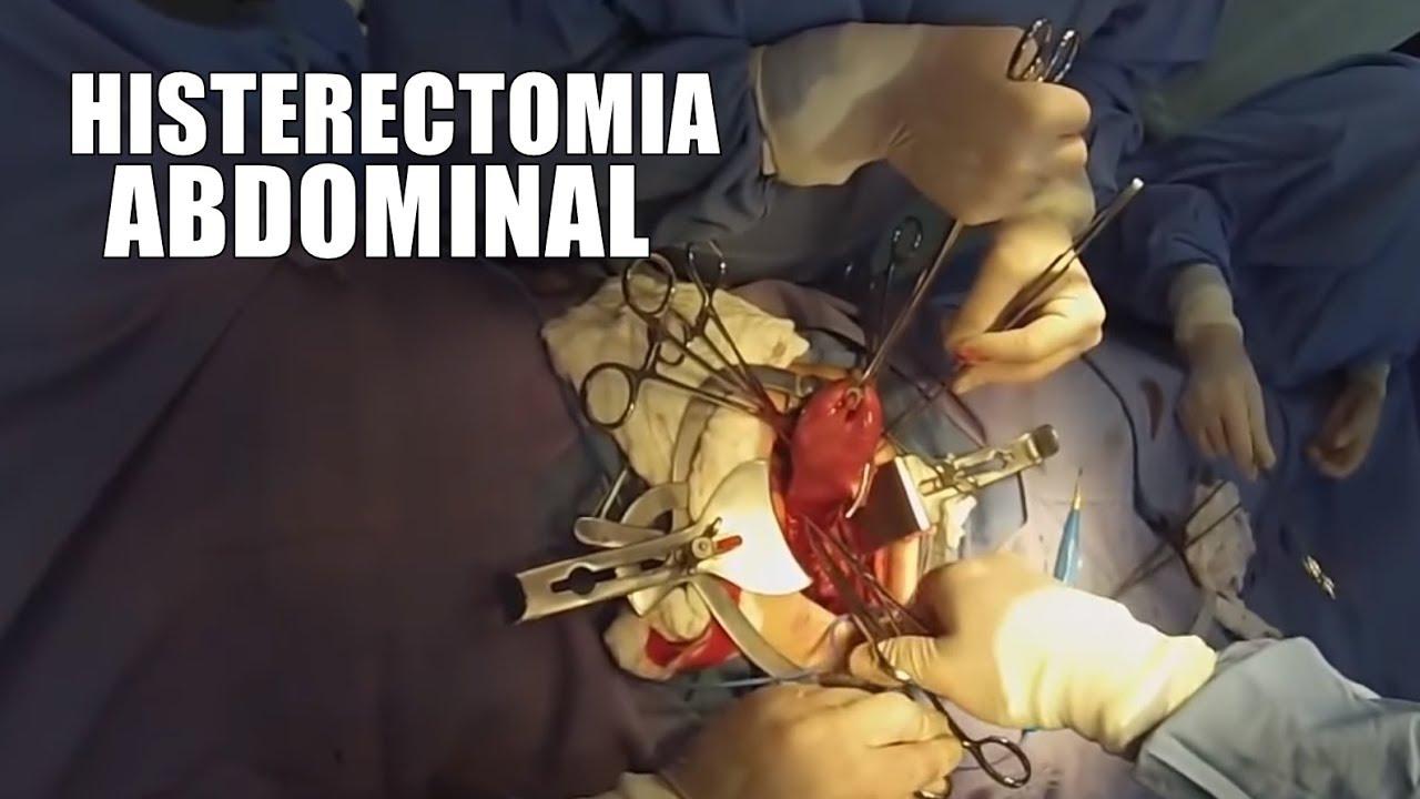 Cirurgia | Histerectomia Abdominal Total ᴴᴰ - YouTube
