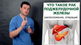 Что такое рак поджелудочной железы. Врач-онколог Владимир Лядов