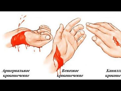Остановить кровотечение. Артерильное и Венозное кровотечение
