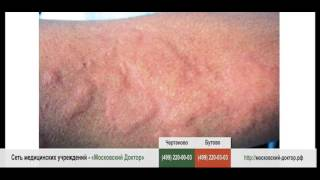 видео Аллергия на апельсины: причины, симптомы, лечение