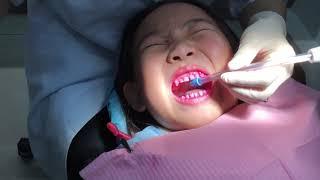 陳莘亞6歲7個月去檢查牙齒很勇敢在采風牙醫診所-2018年12月5日 thumbnail