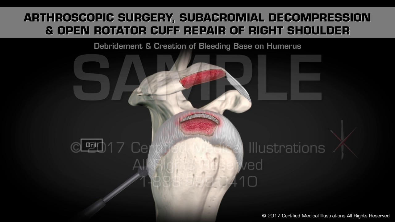 Arthroscopic Surgery, Subacromial Decompression & Open Rotator Cuff ...