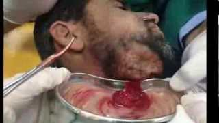 Repeat youtube video Hilton method for abscess (Incision & Drainage)  (Subcutaneous) تفجير خراج مسافة شدقية سني المنشأ