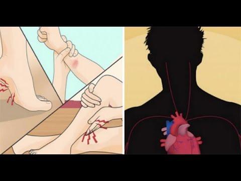 เช็คด่วน! ถ้ามีอาการ อ่อนเพลียเรื้อรังปวดเมื่อยตามตัวเช็กให้ชัวร์คุณอาจเป็น Chronic Fatigue Syndrome